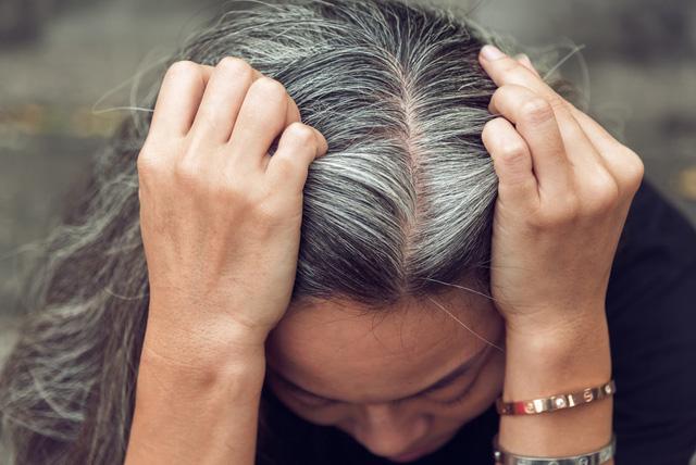 Tóc bạc sớm: Bác sĩ lý giải nguyên nhân - Ảnh 1