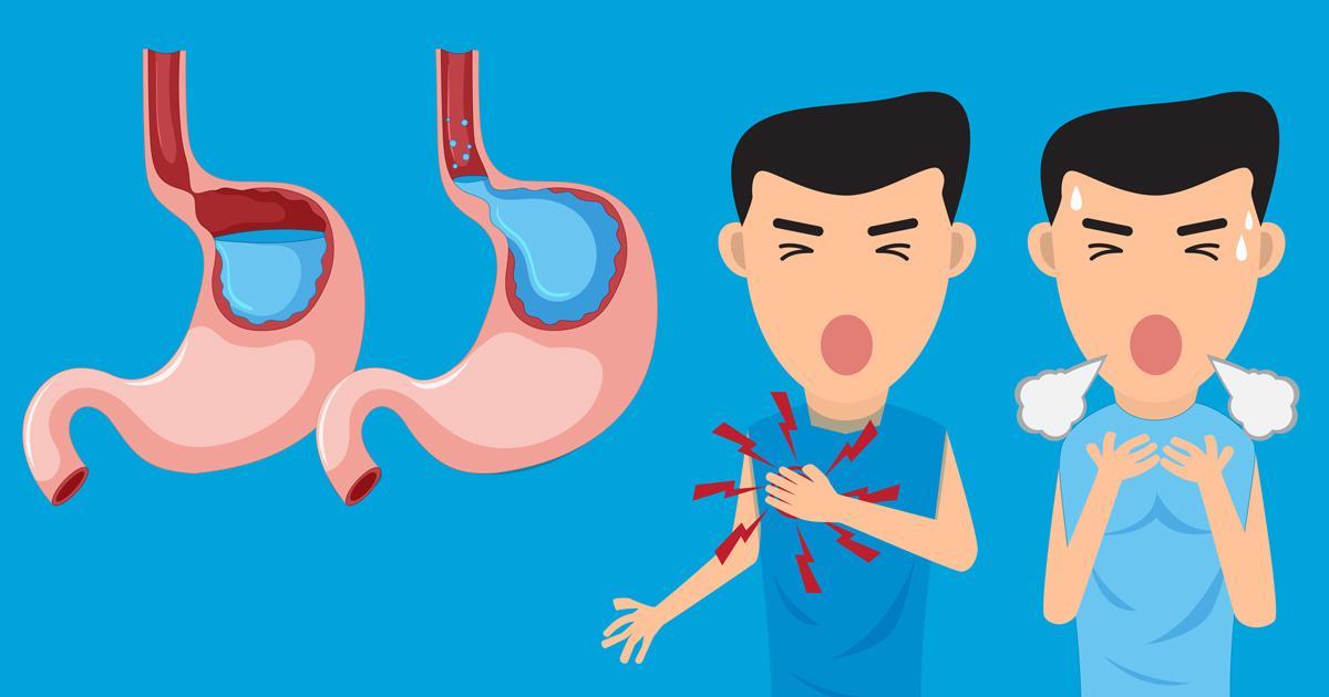 Trào ngược thực quản: Căn bệnh tưởng đơn giản nhưng nhiều biến chứng - Ảnh 1