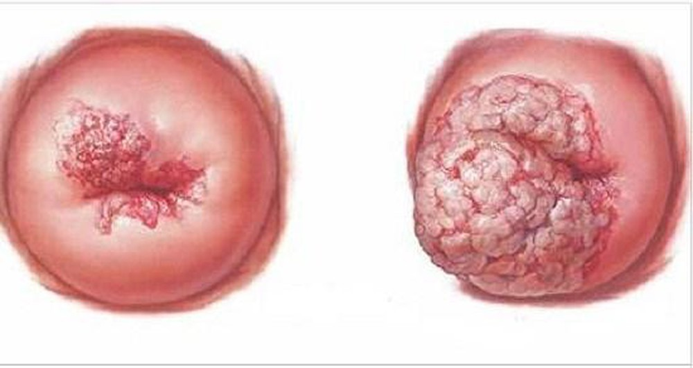 Bé 14 tuổi bị ung thư cổ tử cung giai đoạn cuối: Thủ phạm gây bệnh là gì? - Ảnh 2