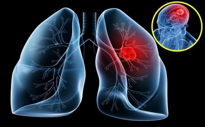 Khó thở, đau tức ngực đi khám phát hiện ung thư giai đoạn cuối - Ảnh 2