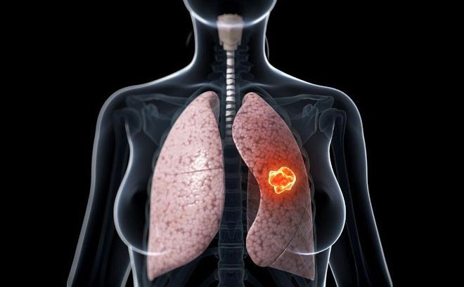 Bệnh ung thư phổi mà nghệ sĩ Lê Bình mắc phải ác tính như thế nào? - Ảnh 1