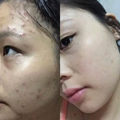 """Bác sĩ chứng minh: Dùng dầu rửa mặt thì da sẽ đẹp hơn bao giờ hết, thử 1 lần đi, bạn sẽ """"nghiện"""" ngay cho mà xem - Ảnh 5"""