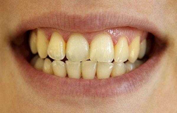 2 cách giúp hàm răng trắng tự nhiên - Ảnh 1