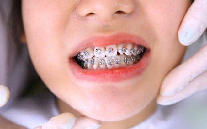 Đưa những chiếc răng khấp khểnh về đúng chỗ - Ảnh 1
