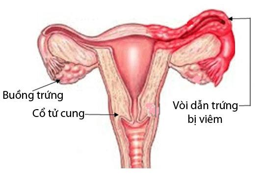 Viêm tắc vòi trứng dễ gây vô sinh - Ảnh 1