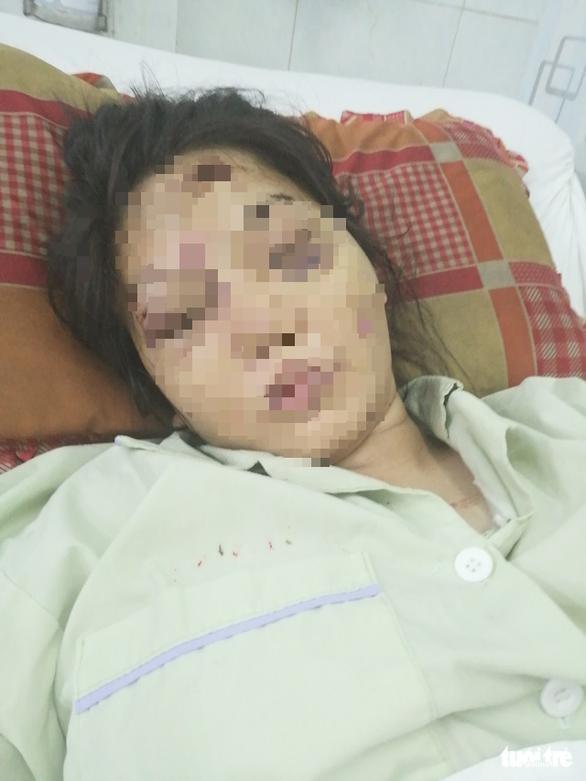 Khởi tố nữ chủ mưu vụ giam giữ, đánh sẩy thai cô gái 18 tuổi - Ảnh 3