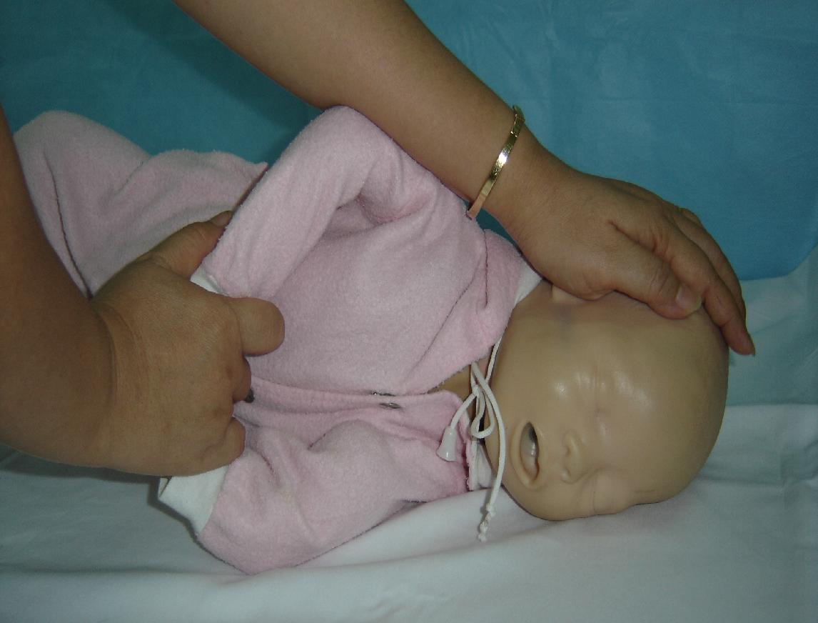 Bác sĩ Nhi hướng dẫn cách xử trí khi trẻ bị co giật, tránh nguy hiểm đến tính mạng - Ảnh 2