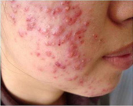 Cách điều trị và phục hồi da sau dùng kem trộn - Ảnh 1