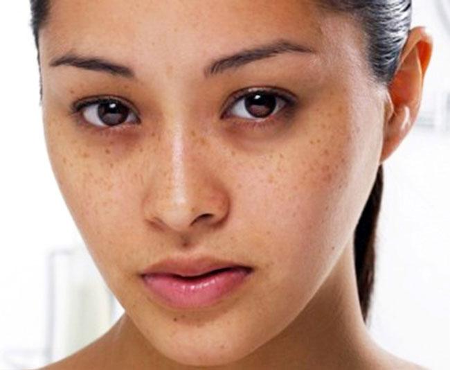 Bên cạnh việc sử dụng các loại mỹ phẩm, bạn có thể dùng bài thuốc sau từ quả vải để làm nhạt vùng da bị tăng sắc tố