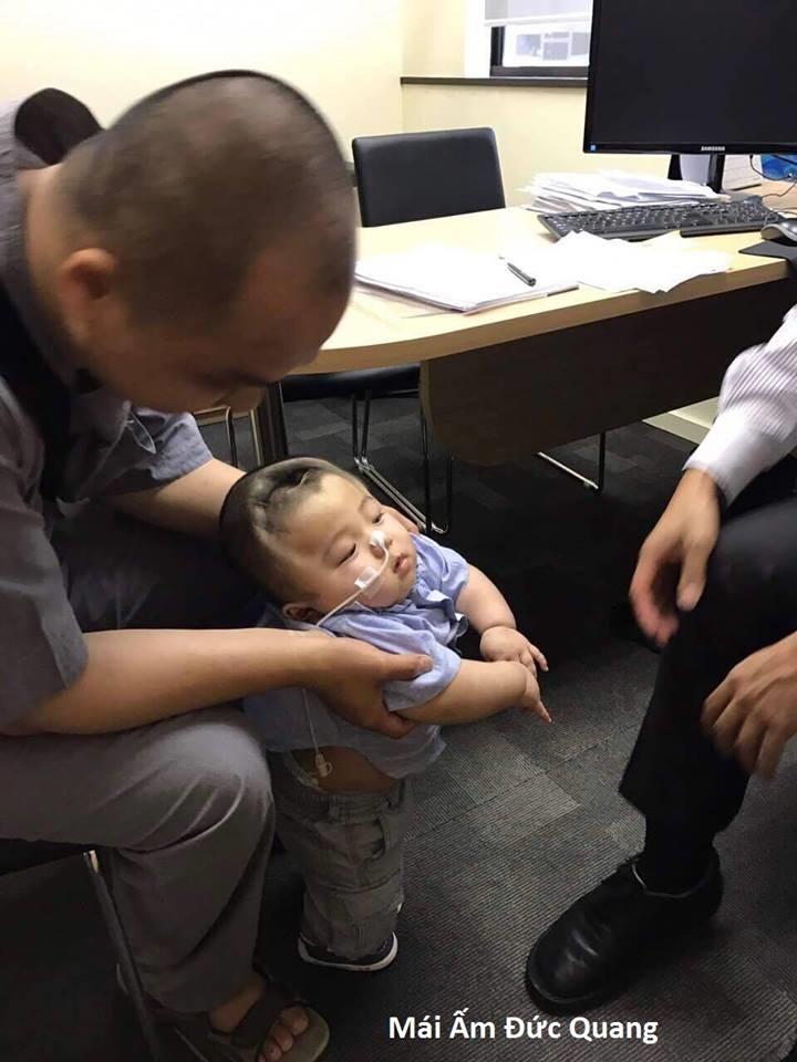 Bé Phạm Đức Lộc: Sau não úng thủy, bác sĩ bắt giảm cân vì có nguy cơ mắc căn bệnh nguy hiểm khác - Ảnh 5