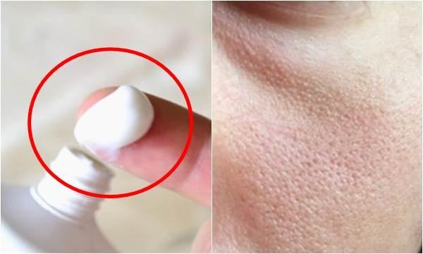 Se khít lỗ chân lông bằng kem đánh răng rất hiệu quả