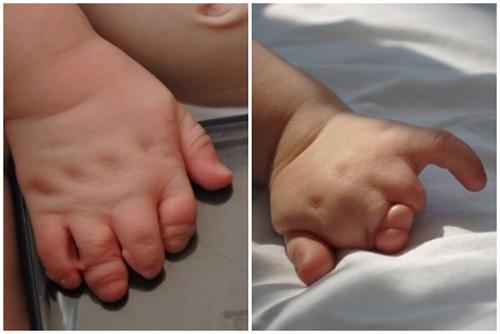Siêu âm 22 tuần, mẹ bàng hoàng phát hiện chân tay con không có ngón - Ảnh 4