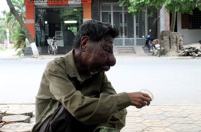 Số phận bi thương của 'ông lão mặt quỷ' 43 năm bị người đời khiếp sợ