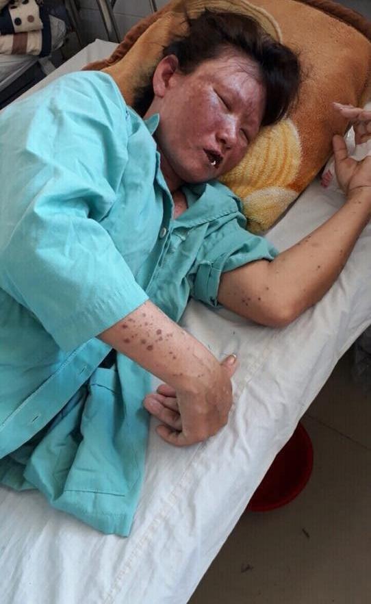 Gia cảnh đau xót của người phụ nữ cơ thể bị hủy hoại hóa 'thân tàn ma dại' sau trận sốt cao - Ảnh 2