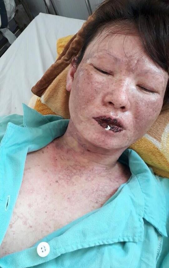 Gia cảnh đau xót của người phụ nữ cơ thể bị hủy hoại hóa 'thân tàn ma dại' sau trận sốt cao - Ảnh 3