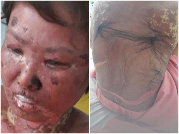 Gia cảnh đau xót của người phụ nữ cơ thể bị hủy hoại hóa 'thân tàn ma dại' sau trận sốt cao - Ảnh 1