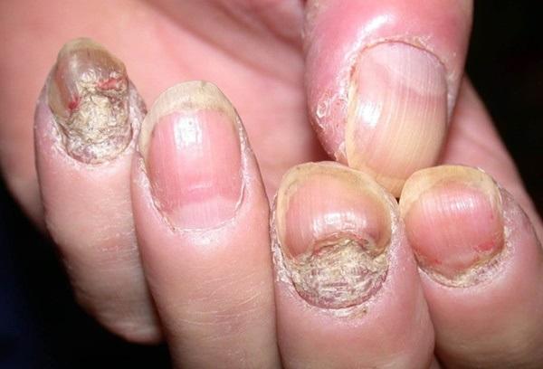 4 tác hại khủng khiếp từ thói quen cắn móng tay - Ảnh 2