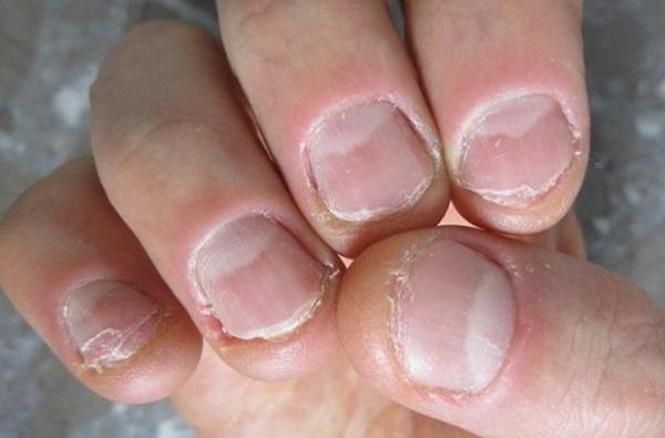 4 tác hại khủng khiếp từ thói quen cắn móng tay - Ảnh 4