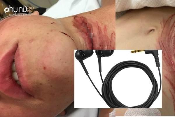 Cảnh báo: Chàng trai 16 tuổi suýt đứt lìa cổ chỉ vì thứ phụ kiện ai cũng có - Ảnh 1