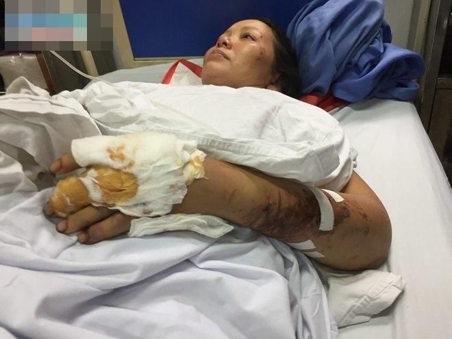 Tay chân dập nát, người mẹ vẫn cố bới đất đá cứu con trai 4 tuổi bị chôn vùi - Ảnh 2