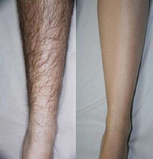Tẩy sạch lông chân, tay bằng 1 nắm lá trầu không - Ảnh 1