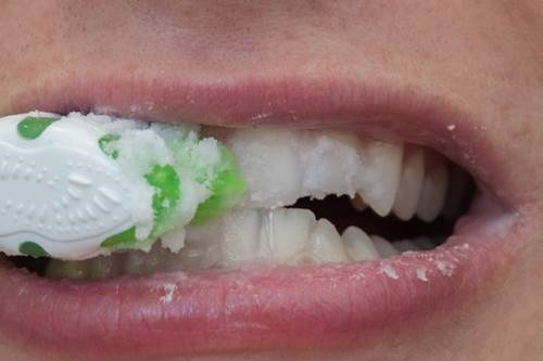 Răng trắng sáng gấp 3 lần nhờ đánh với thứ này, mảng bám cứng như vôi cũng bật ra bằng sạch - Ảnh 4