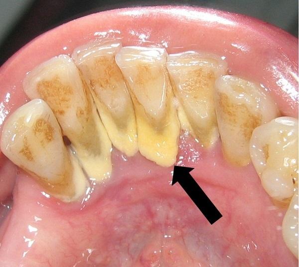 Tẩy sạch cao răng, vết ố vàng nhờ nhai vỏ chanh theo cách này - Ảnh 1