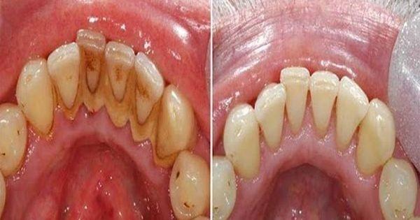 Tẩy sạch cao răng, vết ố vàng nhờ nhai vỏ chanh theo cách này - Ảnh 7