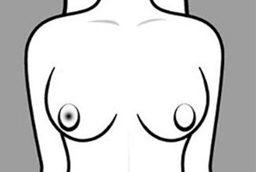 3 vị trí nốt ruồi trên cơ thể phụ nữ càng 'hiểm' càng giàu, được chồng yêu thương hết mực - Ảnh 1