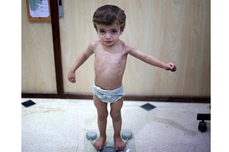 Trẻ suy dinh dưỡng có nguy hiểm không? - Ảnh 1
