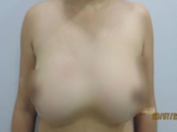 Rút cả lít silicon thông khe giữa ngực người phụ nữ - Ảnh 1