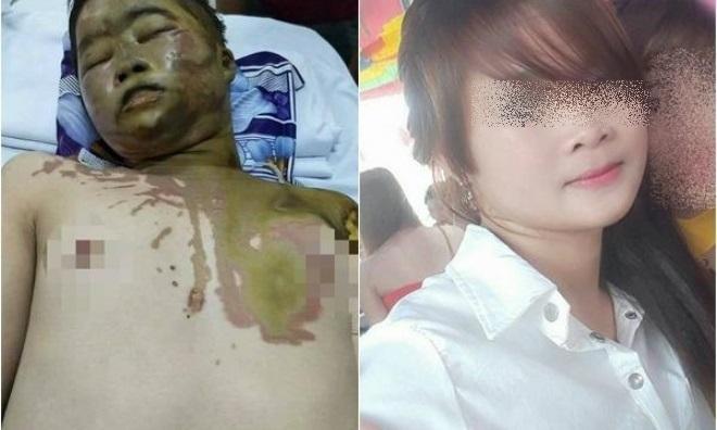 Vụ thiếu nữ 17 tuổi bị tạt axit mù mắt: Lời khai lạnh lùng của thủ phạm - Ảnh 1