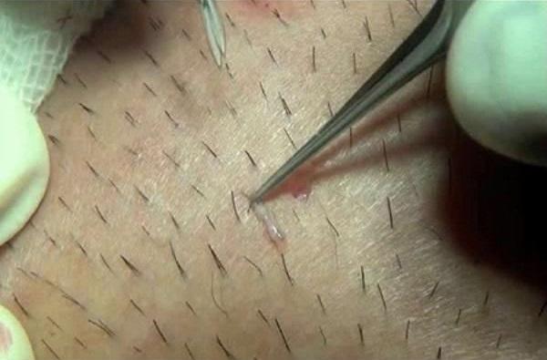 Cảnh báo: Bạn nên dừng ngay 5 thói quen này trước khi da, tóc, móng hỏng hết, số 4 chắc chắn khiến nhiều người hốt hoảng - Ảnh 4