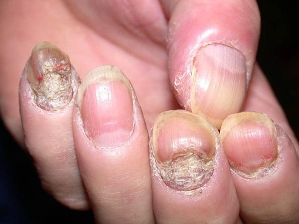 Cảnh báo: Bạn nên dừng ngay 5 thói quen này trước khi da, tóc, móng hỏng hết, số 4 chắc chắn khiến nhiều người hốt hoảng - Ảnh 3