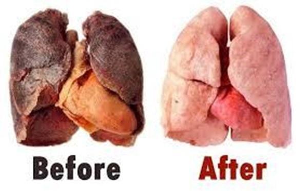 Thanh lọc phổi chỉ trong 3 ngày với loại nước uống đơn giản ai cũng làm được tại nhà - Ảnh 3