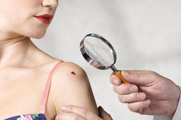 6 lầm tưởng về căn bệnh ung thư dễ mắc nhất khi thời tiết nắng nóng kéo dài - Ảnh 4