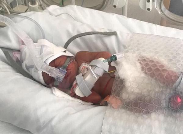 Mẹ bầu 29 tuần bị trụy tim, bác sĩ đã làm một việc không ai ngờ đến - Ảnh 3