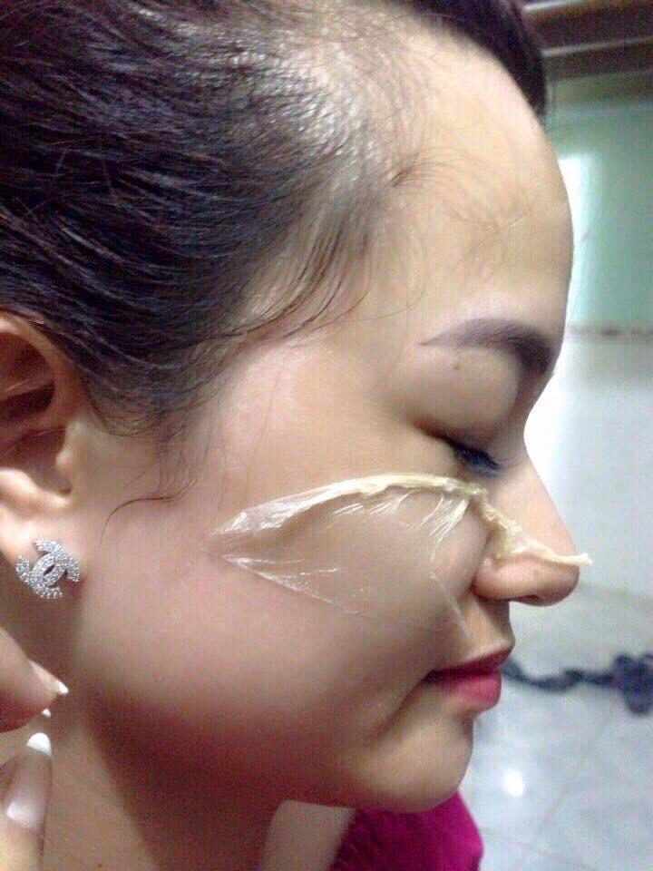 Mặt nạ lột giúp dưỡng da đẹp, trắng hồng nhanh chóng