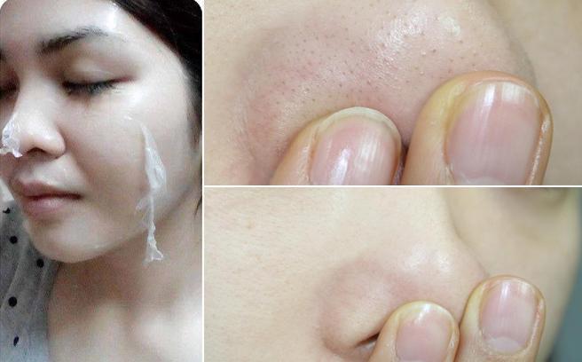 Đắp mặt nạ lột da giúp tẩy da chết, trị mụn đầu đen đơn giản