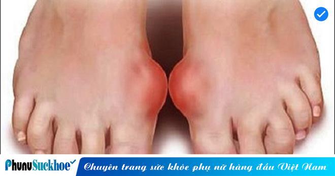 Nhìn xuống bàn chân thấy 6 dấu hiệu này cần đi khám ngay, đừng để lâu mà hối không kịp