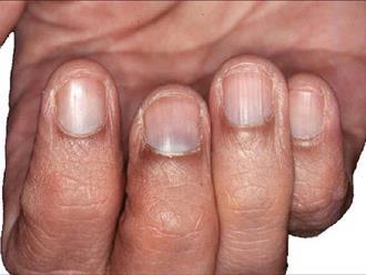 Đoán bệnh qua màu sắc quầng móng tay