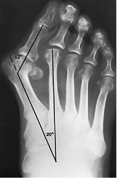 Nguyên nhân và cách chữa trị biến dạng ngón chân cái, những biện pháp có thể tự thực hiện - Ảnh 1