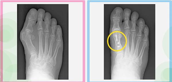 Nguyên nhân và cách chữa trị biến dạng ngón chân cái, những biện pháp có thể tự thực hiện - Ảnh 7
