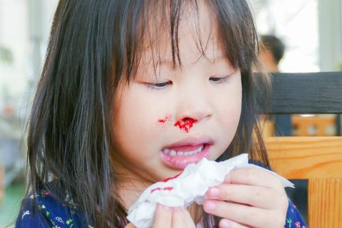 Một số lưu ý quan trọng khi trẻ bị chảy máu cam - Ảnh 1