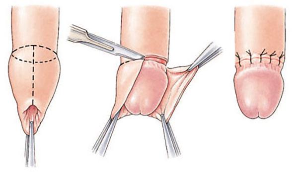 Phẫu thuật cắt bao quy đầu sẽ giúp nam giới giải quyết được nhiều bệnh lý tiềm ẩn