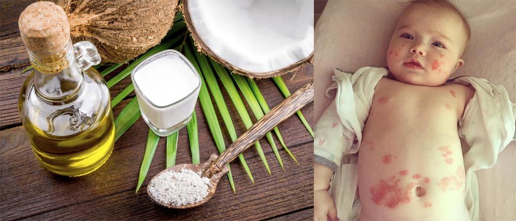 Trị chàm sữa ở trẻ nhỏ bằng dầu dừa hiệu quả