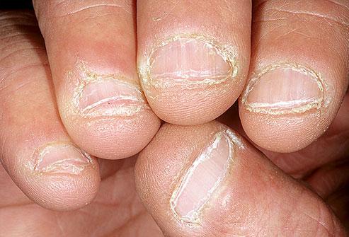 7 dấu hiệu của móng tay tiết lộ tình trạng sức khỏe của bạn - Ảnh 7