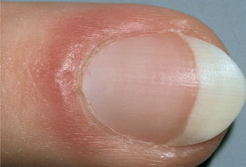 7 dấu hiệu của móng tay tiết lộ tình trạng sức khỏe của bạn - Ảnh 6