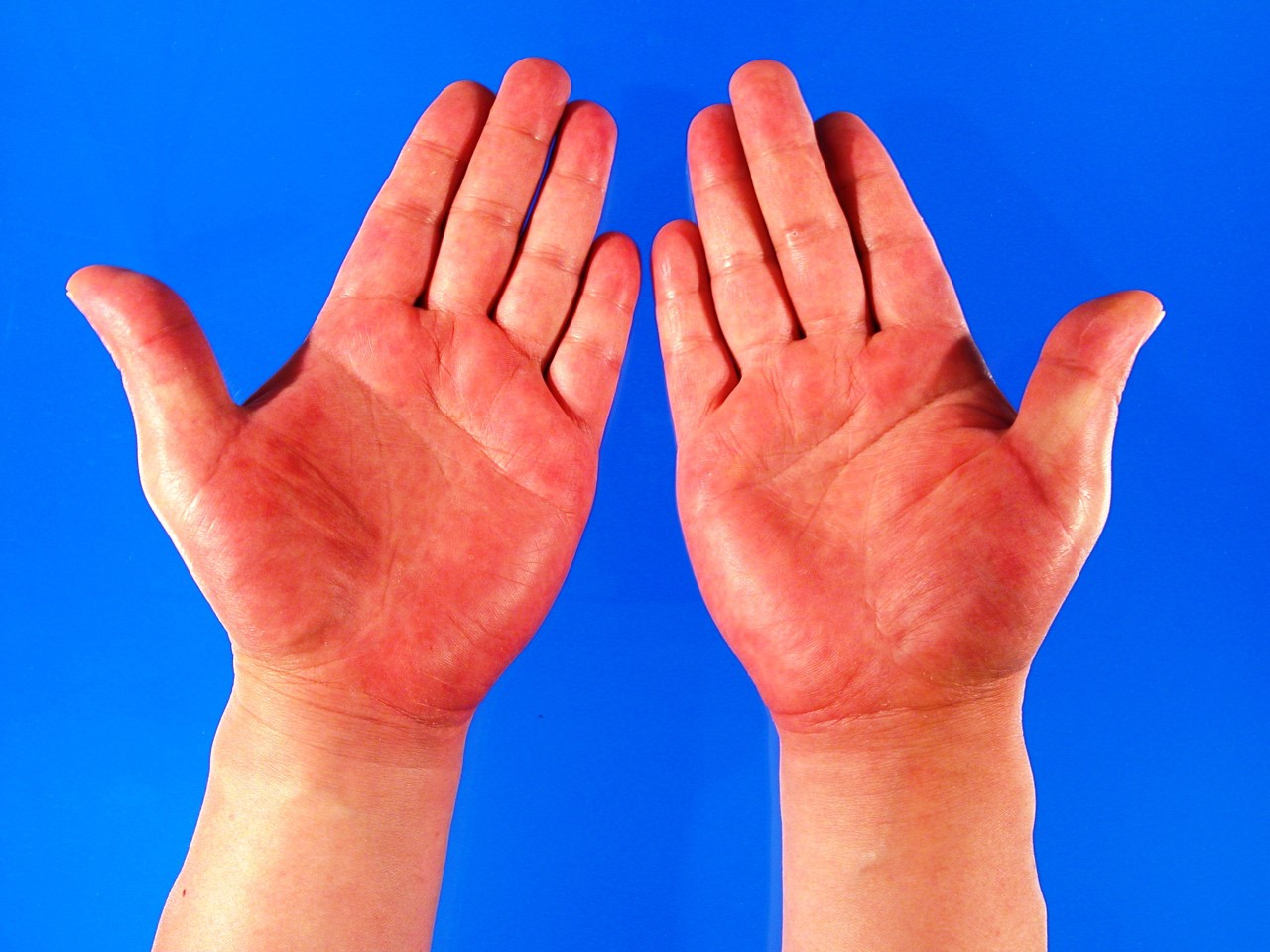 Những dấu hiệu cảnh báo bệnh gan bạn cần quan tâm - Ảnh 3