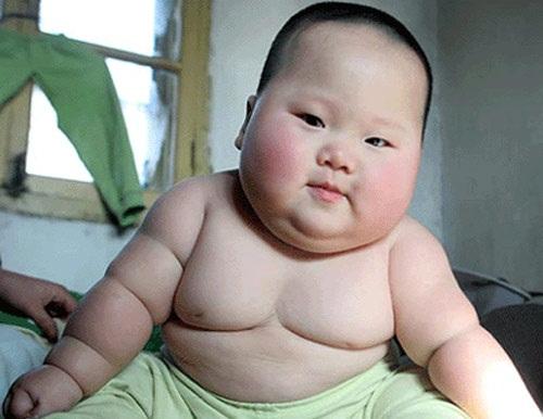 Trẻ thừa cân phải đối mặt với những rủi ro nghiêm trọng nào về sức khỏe? - Ảnh 3